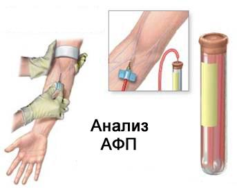 Что показывает анализ крови афп общий анализ крови отзывы